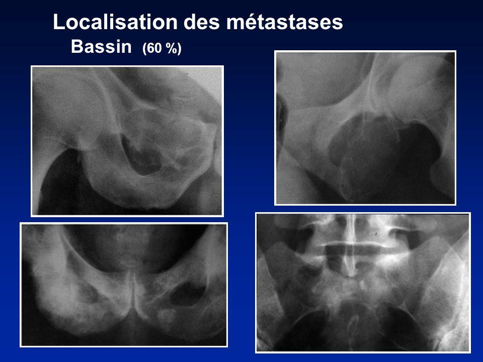 Localisation des métastases Bassin (60 %)