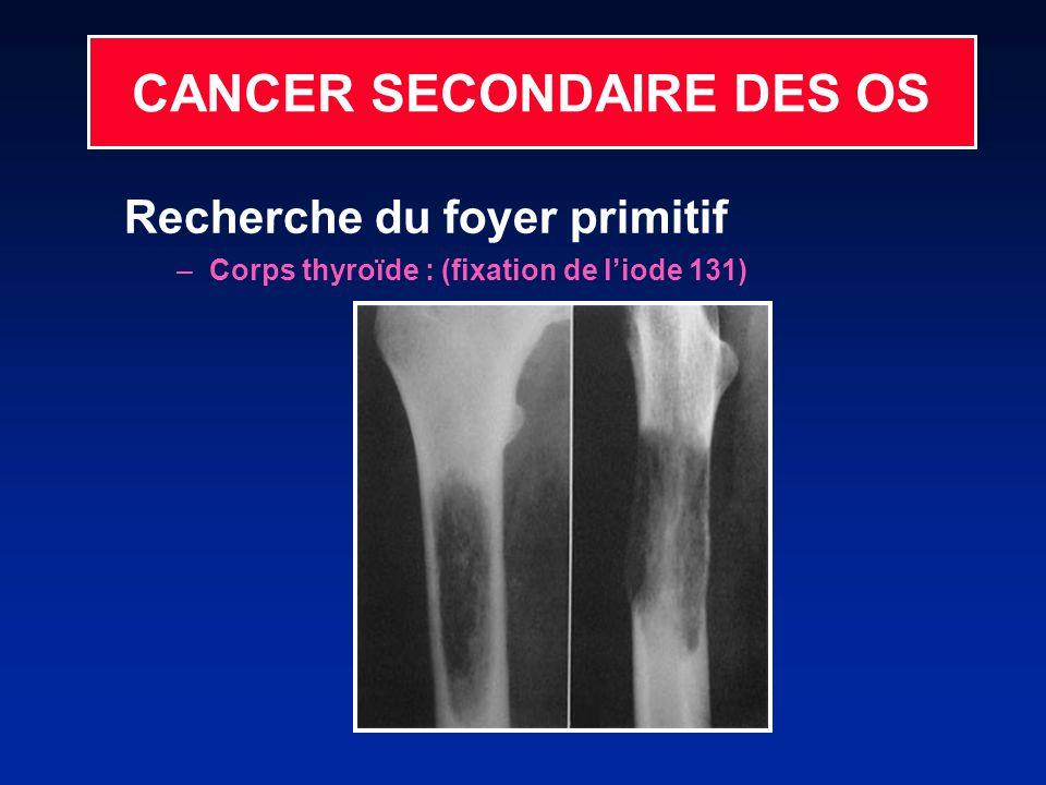 CANCER SECONDAIRE DES OS Recherche du foyer primitif –Corps thyroïde : (fixation de liode 131)