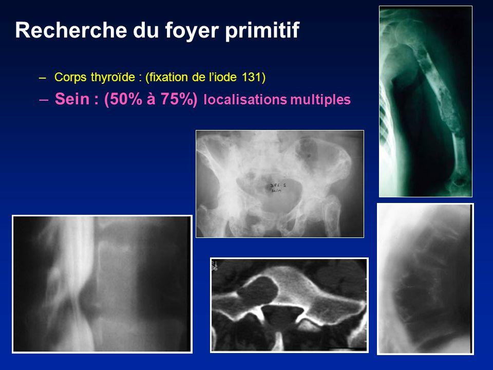 Recherche du foyer primitif –Corps thyroïde : (fixation de liode 131) –Sein : (50% à 75%) localisations multiples