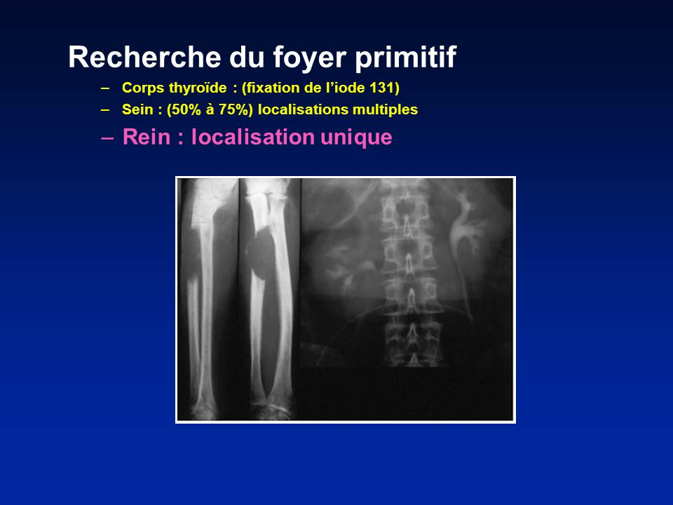Recherche du foyer primitif –Corps thyroïde : (fixation de liode 131) –Sein : (50% à 75%) localisations multiples –Rein : localisation unique