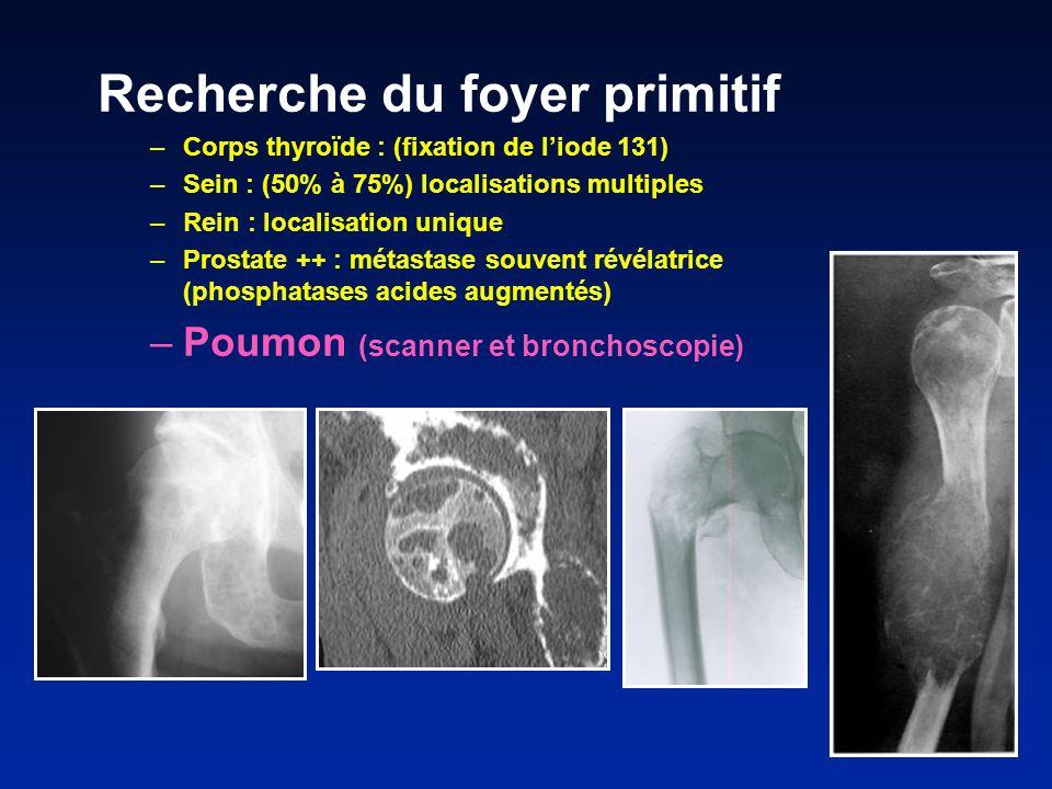 Recherche du foyer primitif –Corps thyroïde : (fixation de liode 131) –Sein : (50% à 75%) localisations multiples –Rein : localisation unique –Prostate ++ : métastase souvent révélatrice (phosphatases acides augmentés) –Poumon (scanner et bronchoscopie)