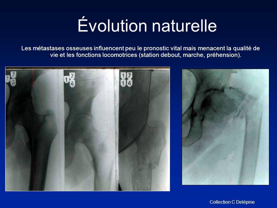 Évolution naturelle Les métastases osseuses influencent peu le pronostic vital mais menacent la qualité de vie et les fonctions locomotrices (station debout, marche, préhension).