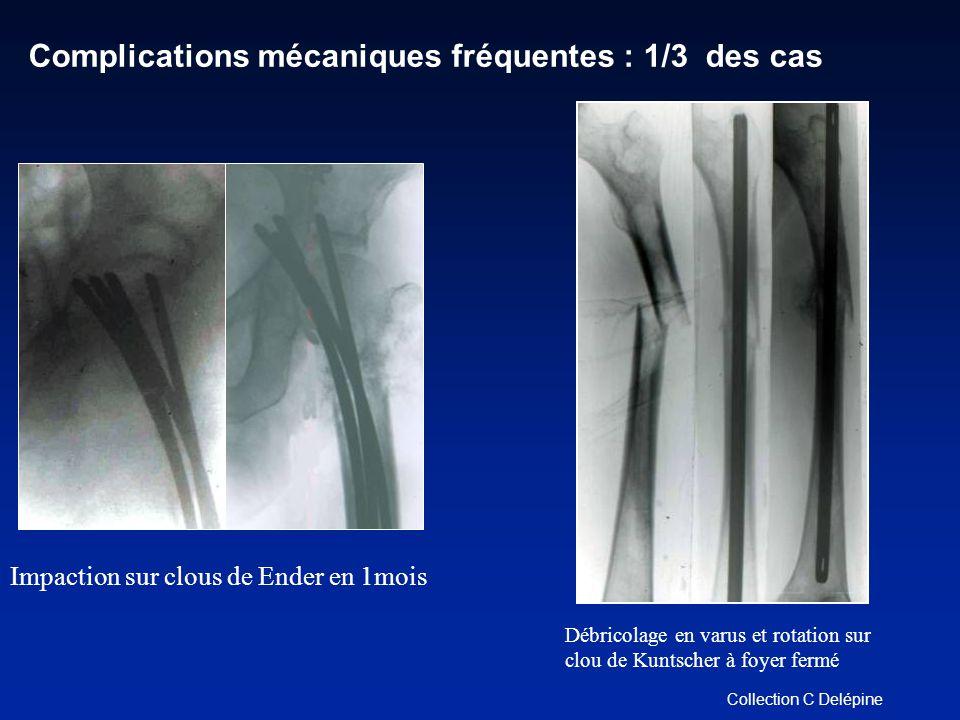 Complications mécaniques fréquentes : 1/3 des cas Impaction sur clous de Ender en 1mois Collection C Delépine Débricolage en varus et rotation sur clou de Kuntscher à foyer fermé