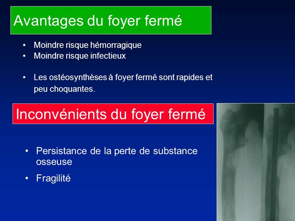 Avantages du foyer fermé Moindre risque hémorragique Moindre risque infectieux Les ostéosynthèses à foyer fermé sont rapides et peu choquantes.