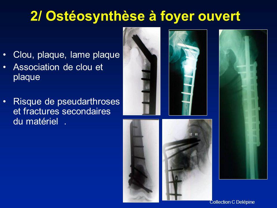 Clou, plaque, lame plaque Association de clou et plaque Risque de pseudarthroses et fractures secondaires du matériel.