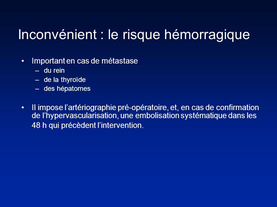 Important en cas de métastase –du rein –de la thyroïde –des hépatomes Il impose lartériographie pré-opératoire, et, en cas de confirmation de lhypervascularisation, une embolisation systématique dans les 48 h qui précèdent lintervention.