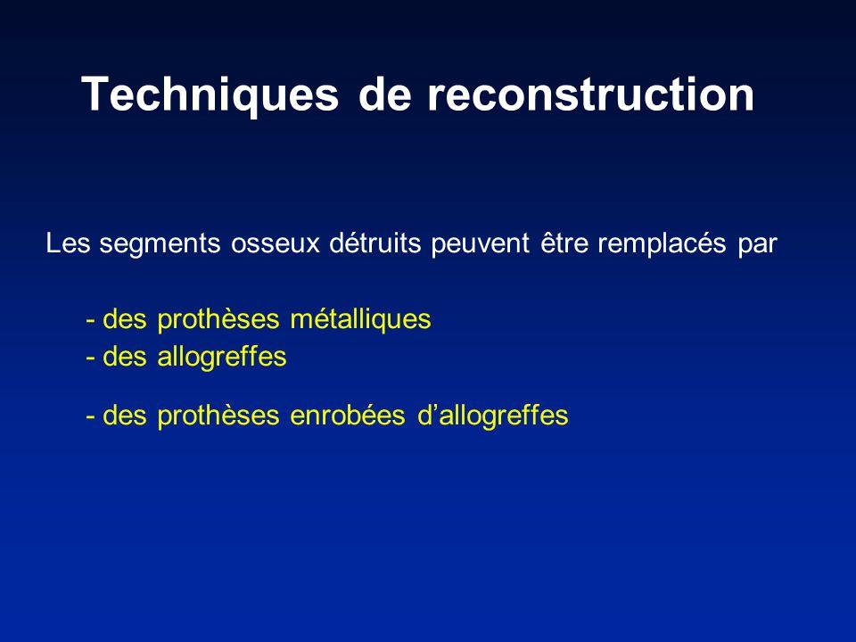 Les segments osseux détruits peuvent être remplacés par - des prothèses métalliques - des allogreffes - des prothèses enrobées dallogreffes Techniques de reconstruction