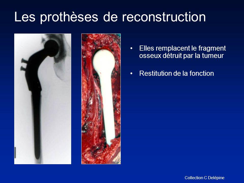 Les prothèses de reconstruction Elles remplacent le fragment osseux détruit par la tumeur Restitution de la fonction Collection C Delépine
