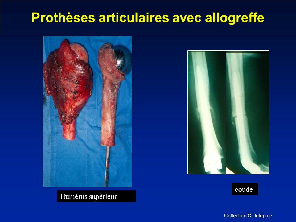 Humérus supérieur coude Collection C Delépine Prothèses articulaires avec allogreffe