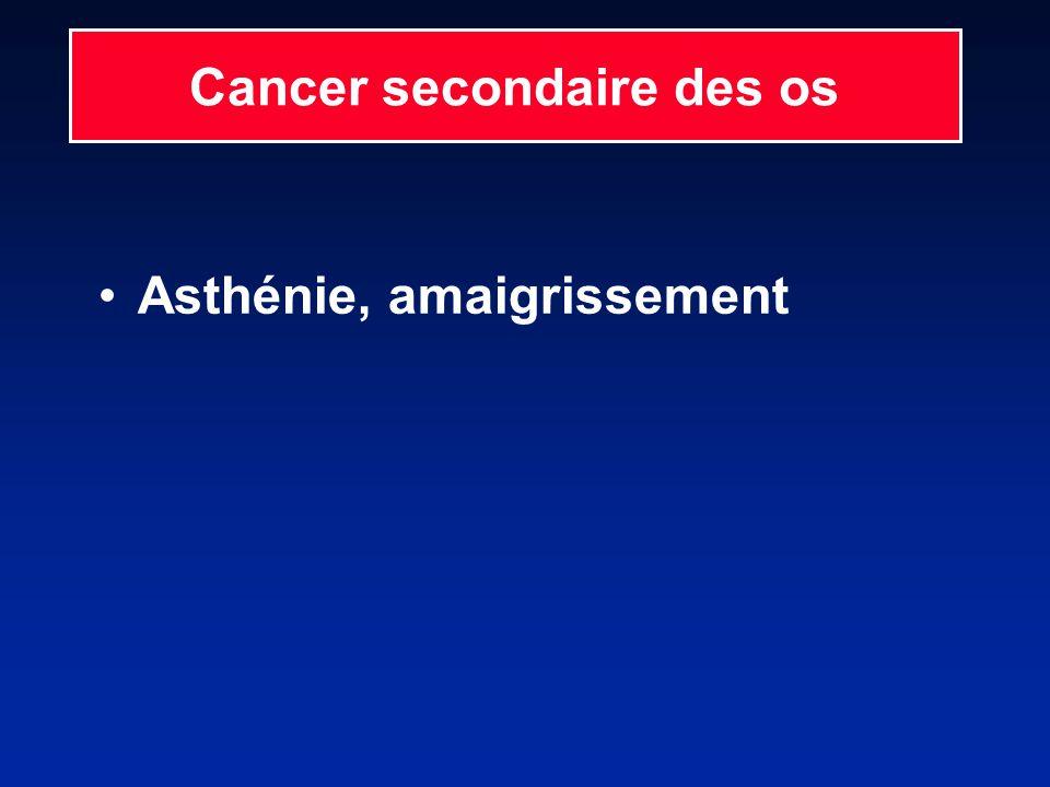 Asthénie, amaigrissement Cancer secondaire des os