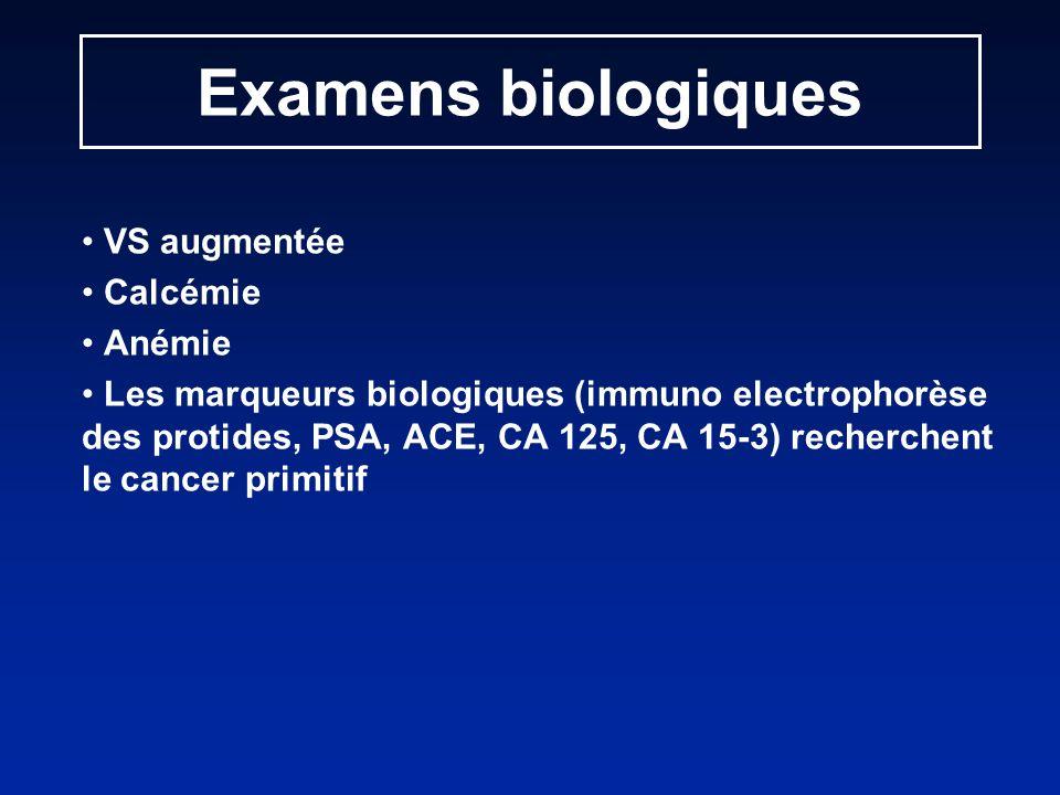 VS augmentée Calcémie Anémie Les marqueurs biologiques (immuno electrophorèse des protides, PSA, ACE, CA 125, CA 15-3) recherchent le cancer primitif Examens biologiques