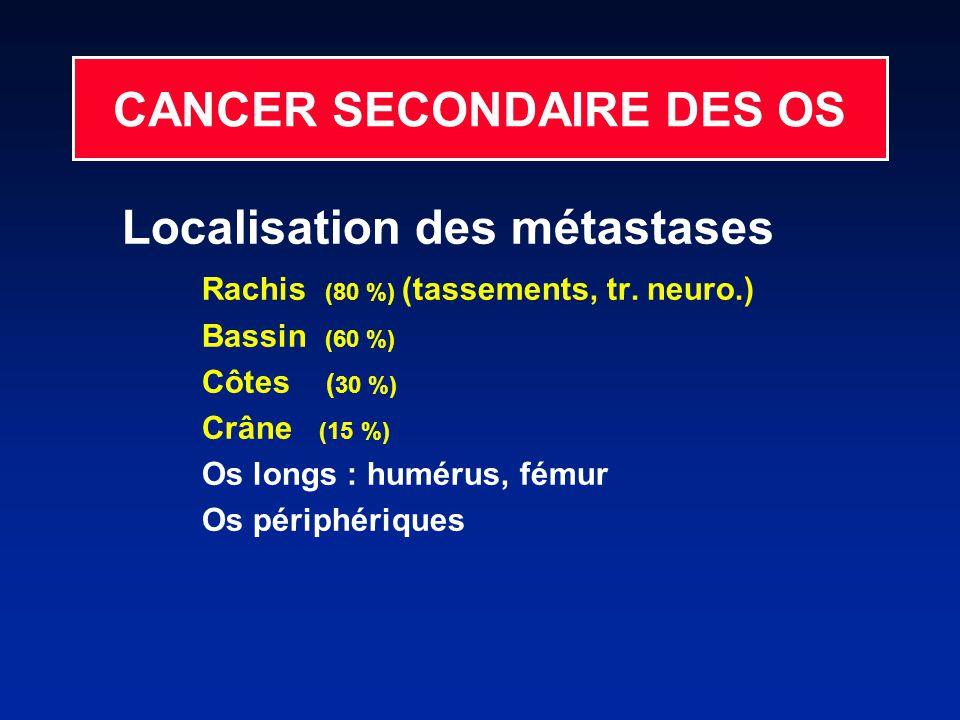 CANCER SECONDAIRE DES OS Localisation des métastases Rachis (80 %) (tassements, tr.