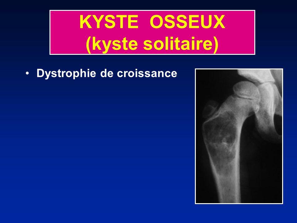 KYSTE OSSEUX (kyste solitaire) Dystrophie de croissance