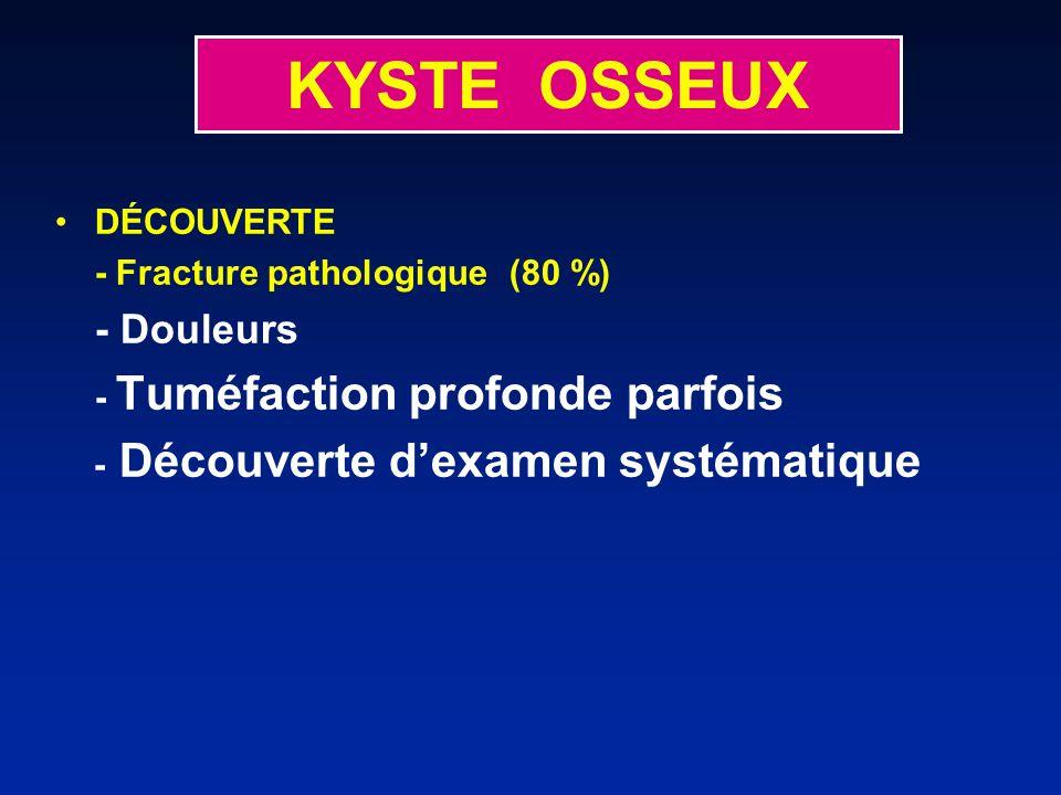 KYSTE OSSEUX DÉCOUVERTE - Fracture pathologique (80 %) - Douleurs - Tuméfaction profonde parfois - Découverte dexamen systématique