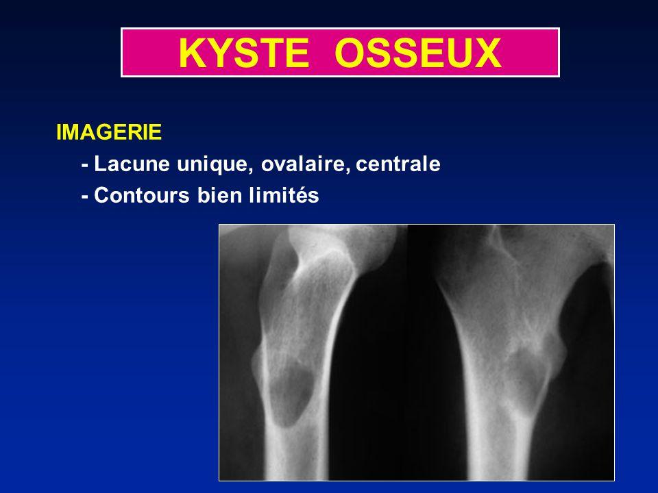 KYSTE OSSEUX IMAGERIE - Lacune unique, ovalaire, centrale - Contours bien limités