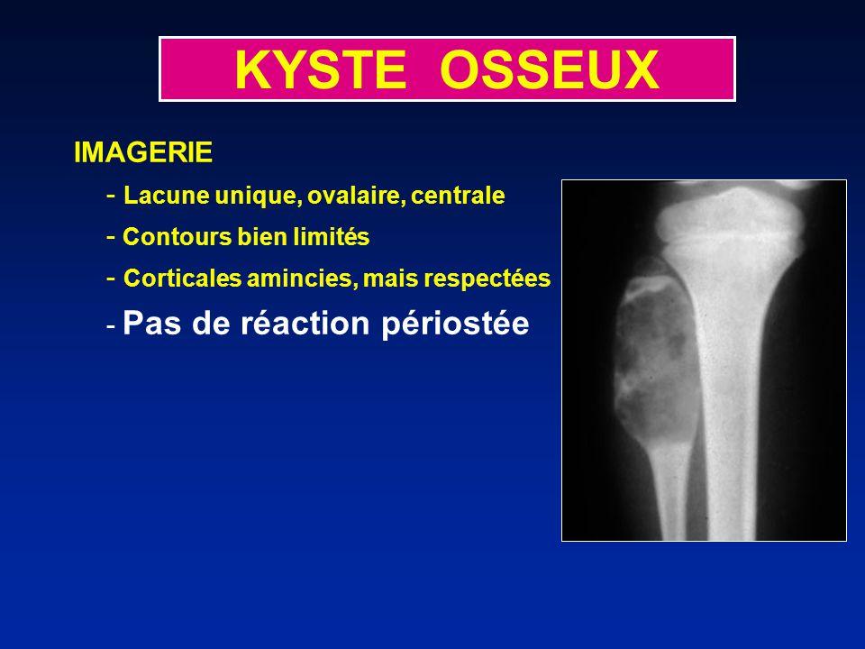 KYSTE OSSEUX IMAGERIE - Lacune unique, ovalaire, centrale - Contours bien limités - Corticales amincies, mais respectées - Pas de réaction périostée