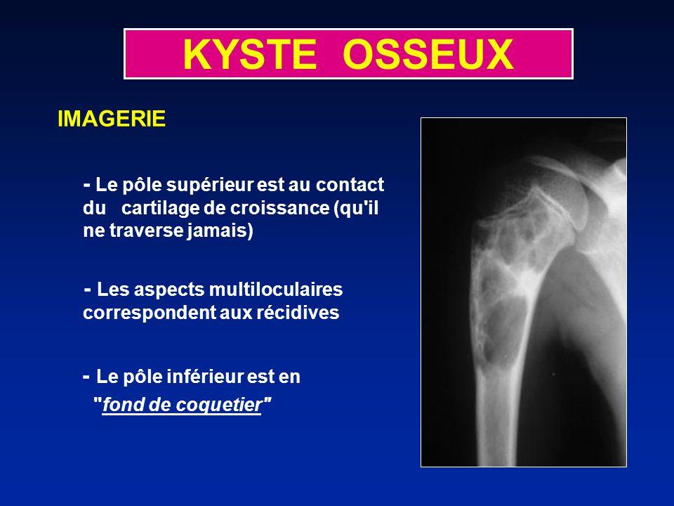 KYSTE OSSEUX IMAGERIE - Le pôle supérieur est au contact du cartilage de croissance (qu il ne traverse jamais) - Les aspects multiloculaires correspondent aux récidives - Le pôle inférieur est en fond de coquetier