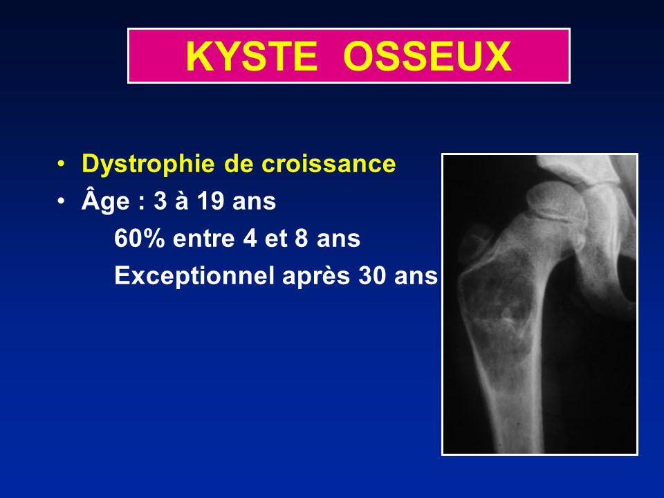KYSTE OSSEUX Dystrophie de croissance Âge : 3 à 19 ans 60% entre 4 et 8 ans Exceptionnel après 30 ans