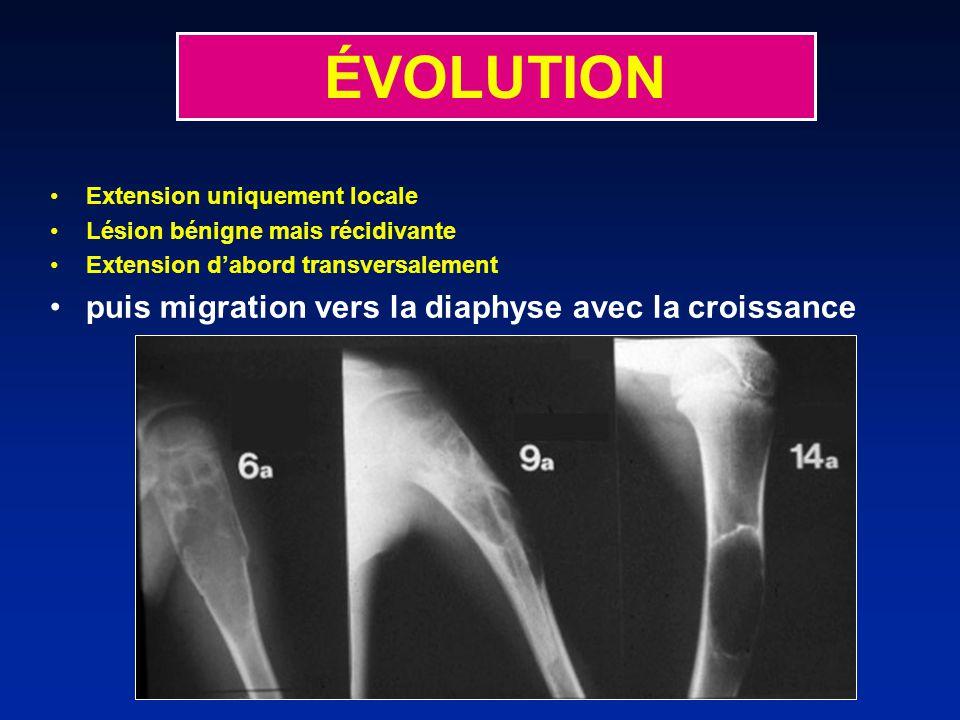 ÉVOLUTION Extension uniquement locale Lésion bénigne mais récidivante Extension dabord transversalement puis migration vers la diaphyse avec la croissance