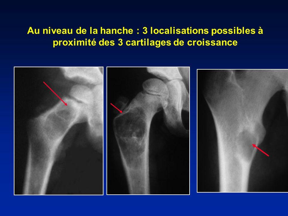 Au niveau de la hanche : 3 localisations possibles à proximité des 3 cartilages de croissance