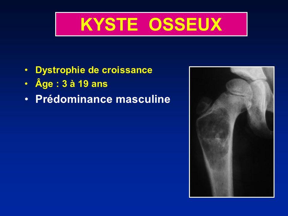 KYSTE OSSEUX Dystrophie de croissance Âge : 3 à 19 ans Prédominance masculine