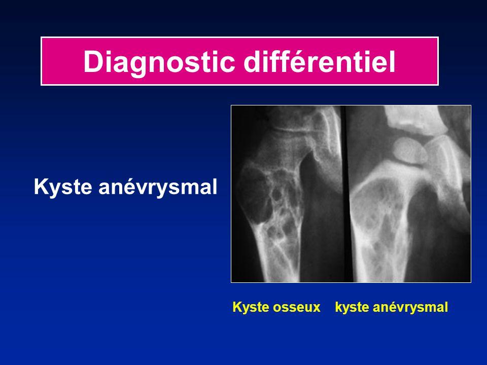 Diagnostic différentiel Kyste anévrysmal Kyste osseux kyste anévrysmal