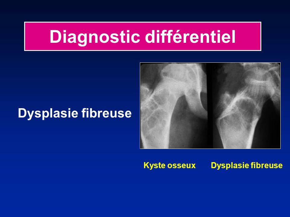 Diagnostic différentiel Dysplasie fibreuse Kyste osseux Dysplasie fibreuse