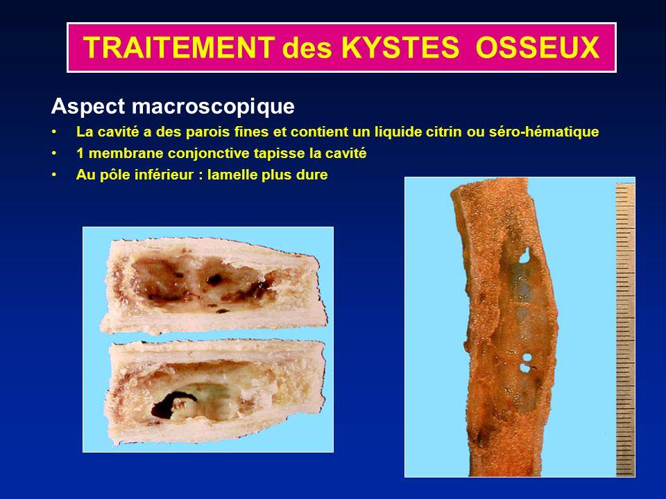 Aspect macroscopique La cavité a des parois fines et contient un liquide citrin ou séro-hématique 1 membrane conjonctive tapisse la cavité Au pôle inférieur : lamelle plus dure