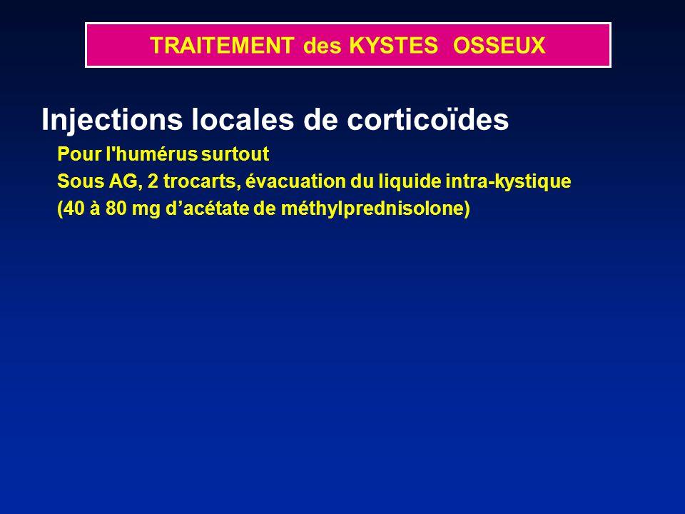 Injections locales de corticoïdes Pour l humérus surtout Sous AG, 2 trocarts, évacuation du liquide intra-kystique (40 à 80 mg dacétate de méthylprednisolone) TRAITEMENT des KYSTES OSSEUX