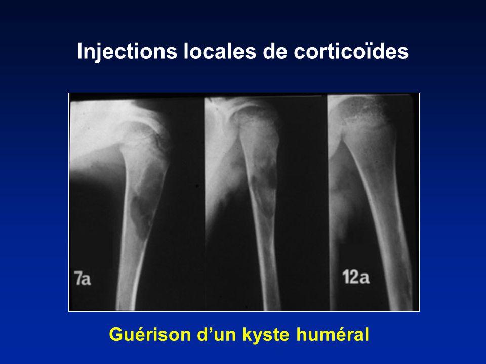Guérison dun kyste huméral Injections locales de corticoïdes