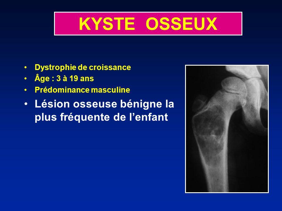 KYSTE OSSEUX Dystrophie de croissance Âge : 3 à 19 ans Prédominance masculine Lésion osseuse bénigne la plus fréquente de lenfant