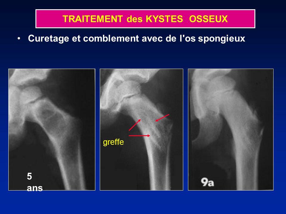 TRAITEMENT des KYSTES OSSEUX Curetage et comblement avec de l os spongieux greffe 5 ans