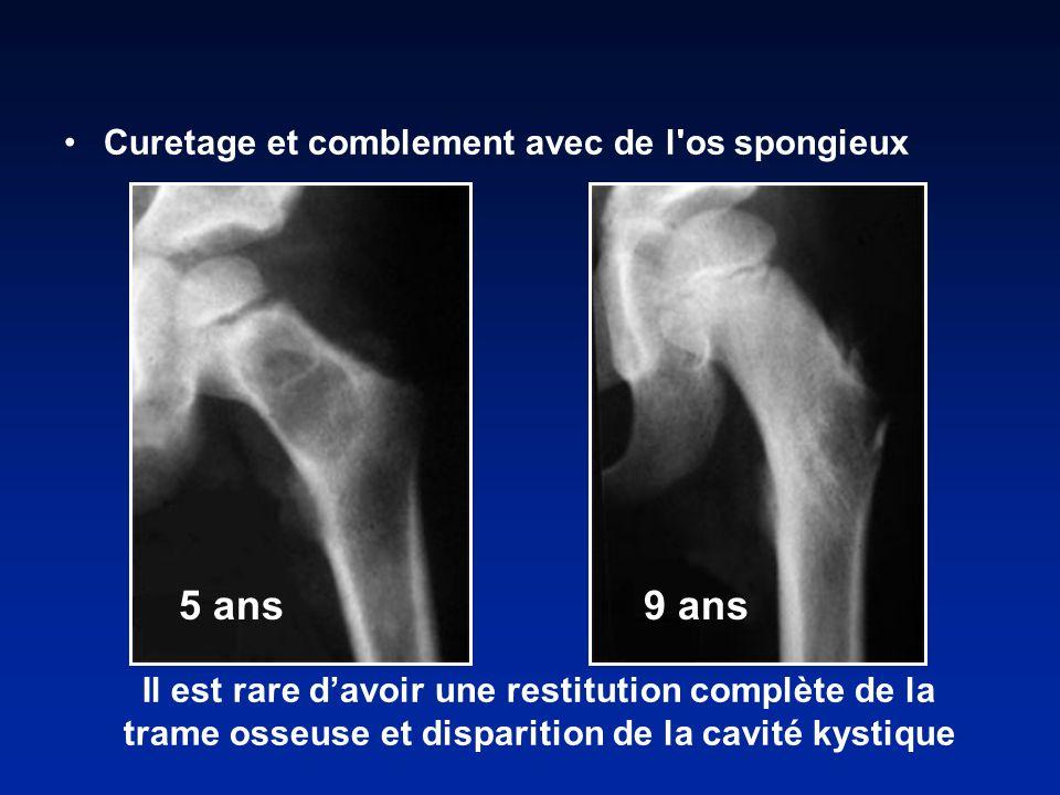 Il est rare davoir une restitution complète de la trame osseuse et disparition de la cavité kystique 5 ans 9 ans Curetage et comblement avec de l os spongieux