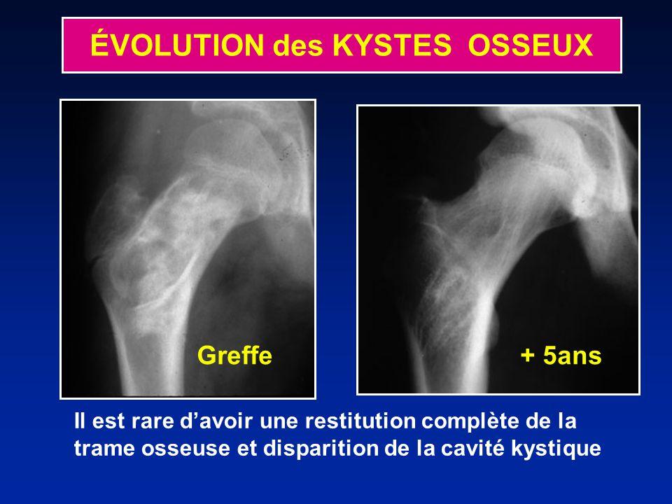 Il est rare davoir une restitution complète de la trame osseuse et disparition de la cavité kystique Greffe + 5ans ÉVOLUTION des KYSTES OSSEUX
