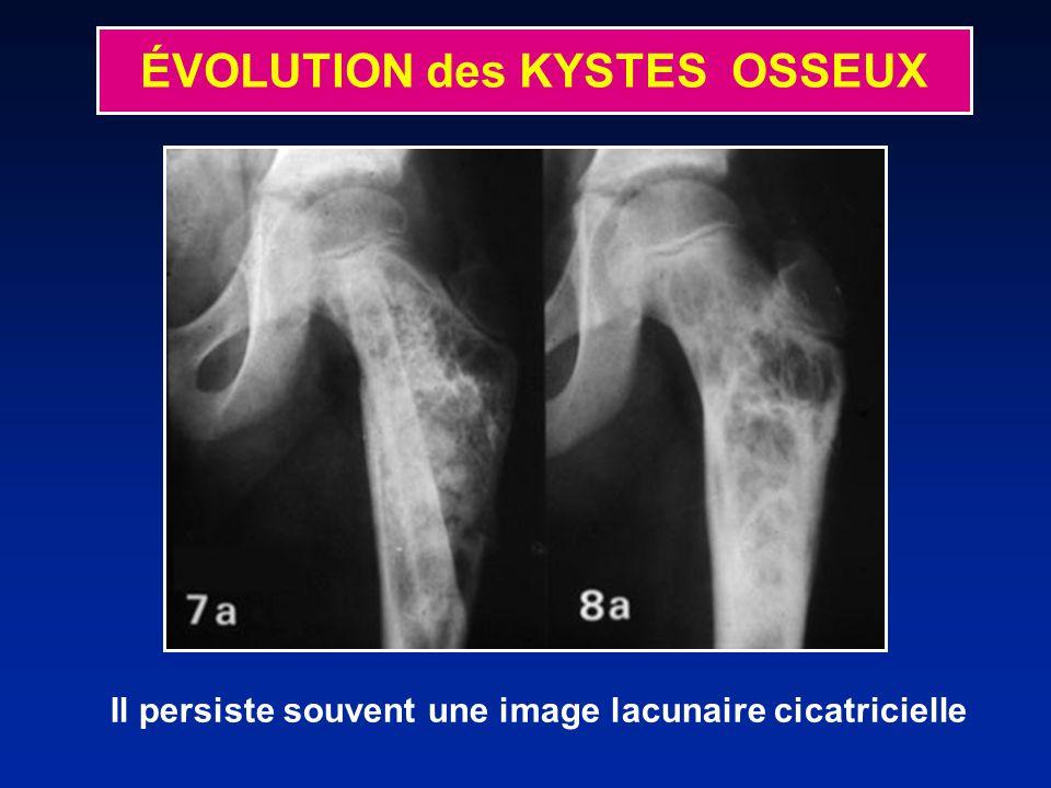 Il persiste souvent une image lacunaire cicatricielle ÉVOLUTION des KYSTES OSSEUX