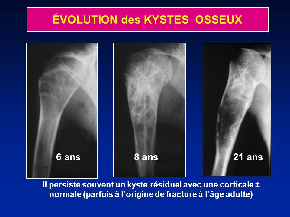 Il persiste souvent un kyste résiduel avec une corticale ± normale (parfois à lorigine de fracture à lâge adulte) 6 ans 8 ans 21 ans ÉVOLUTION des KYSTES OSSEUX