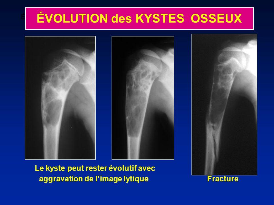 Le kyste peut rester évolutif avec aggravation de limage lytique Fracture ÉVOLUTION Kyste restant actif avec aggravation de limage préexistante ÉVOLUTION des KYSTES OSSEUX