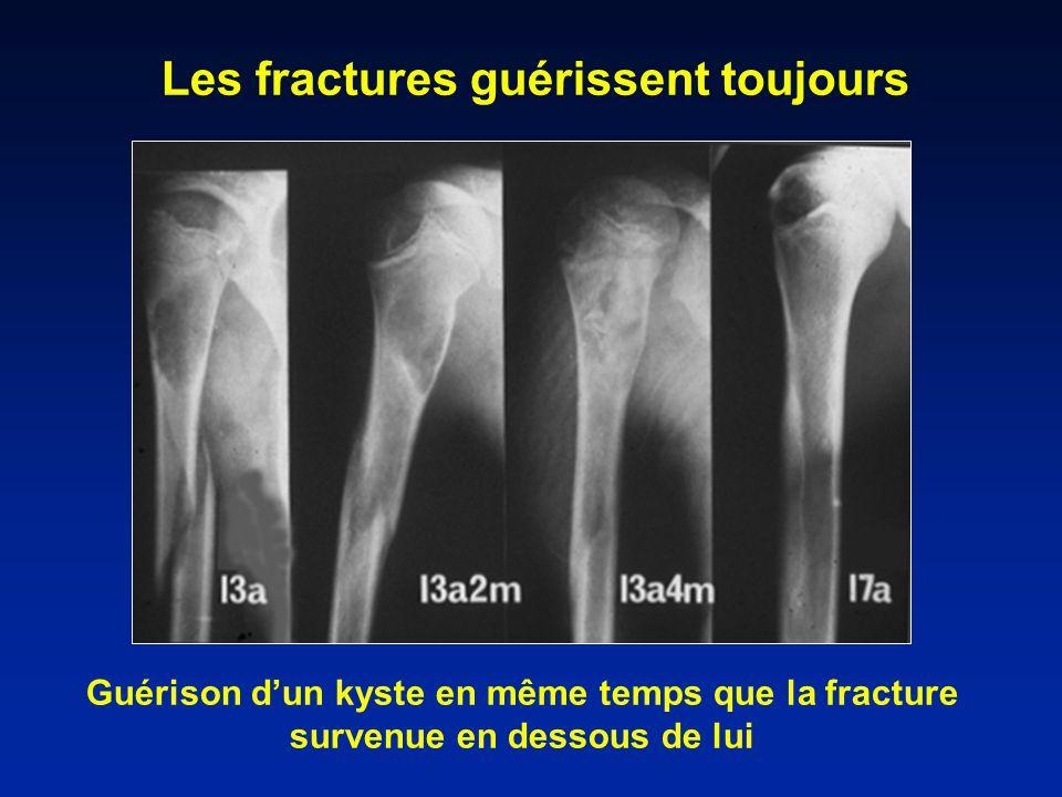 Guérison dun kyste en même temps que la fracture survenue en dessous de lui Les fractures guérissent toujours