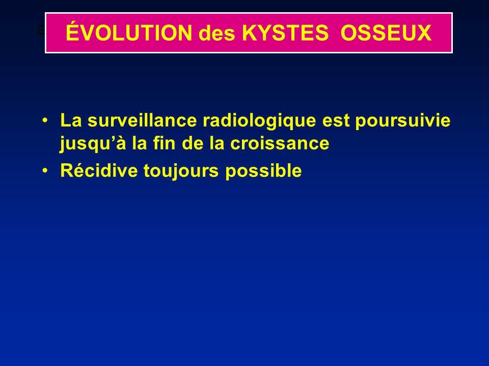 ÉVOLUTION Kyste restant actif avec aggravation de limage préexistante ÉVOLUTION des KYSTES OSSEUX La surveillance radiologique est poursuivie jusquà la fin de la croissance Récidive toujours possible