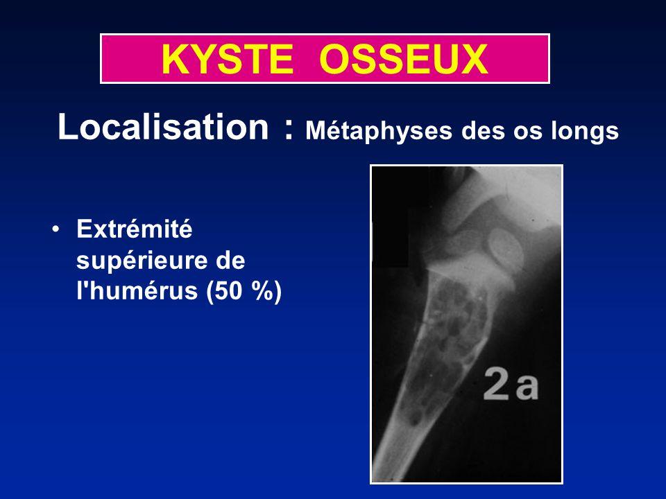 KYSTE OSSEUX Extrémité supérieure de l humérus (50 %) Localisation : Métaphyses des os longs