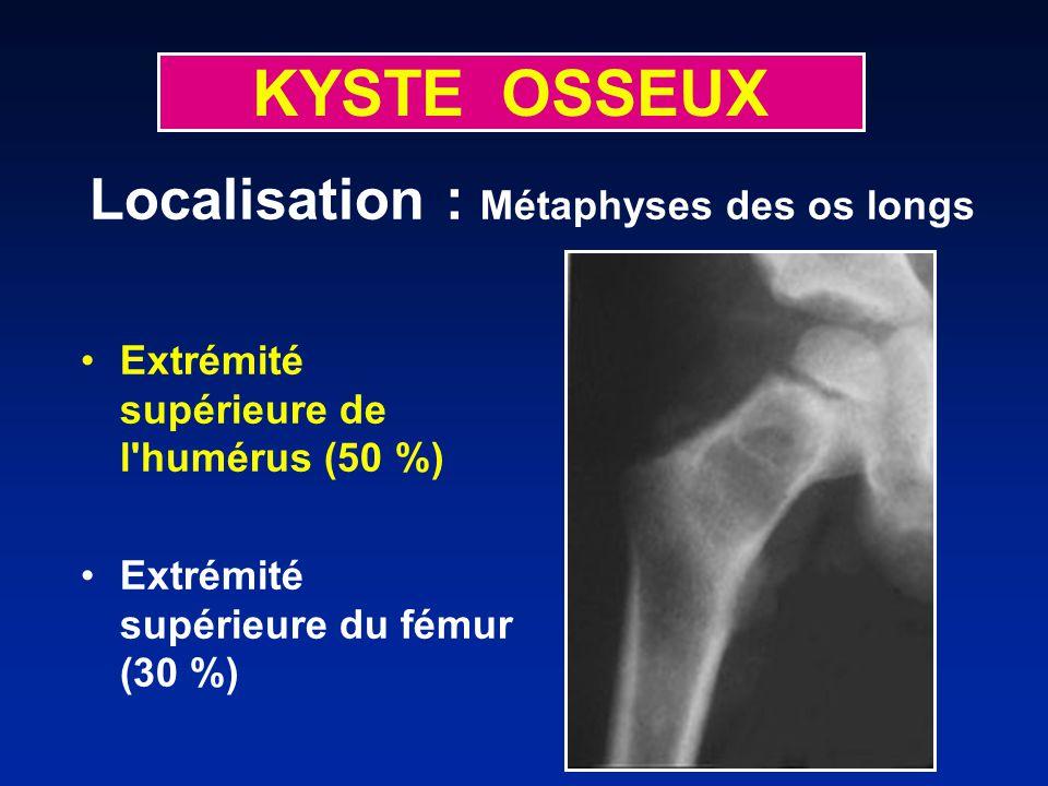 KYSTE OSSEUX Extrémité supérieure de l humérus (50 %) Extrémité supérieure du fémur (30 %) Localisation : Métaphyses des os longs