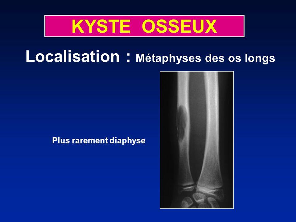KYSTE OSSEUX Plus rarement diaphyse Localisation : Métaphyses des os longs