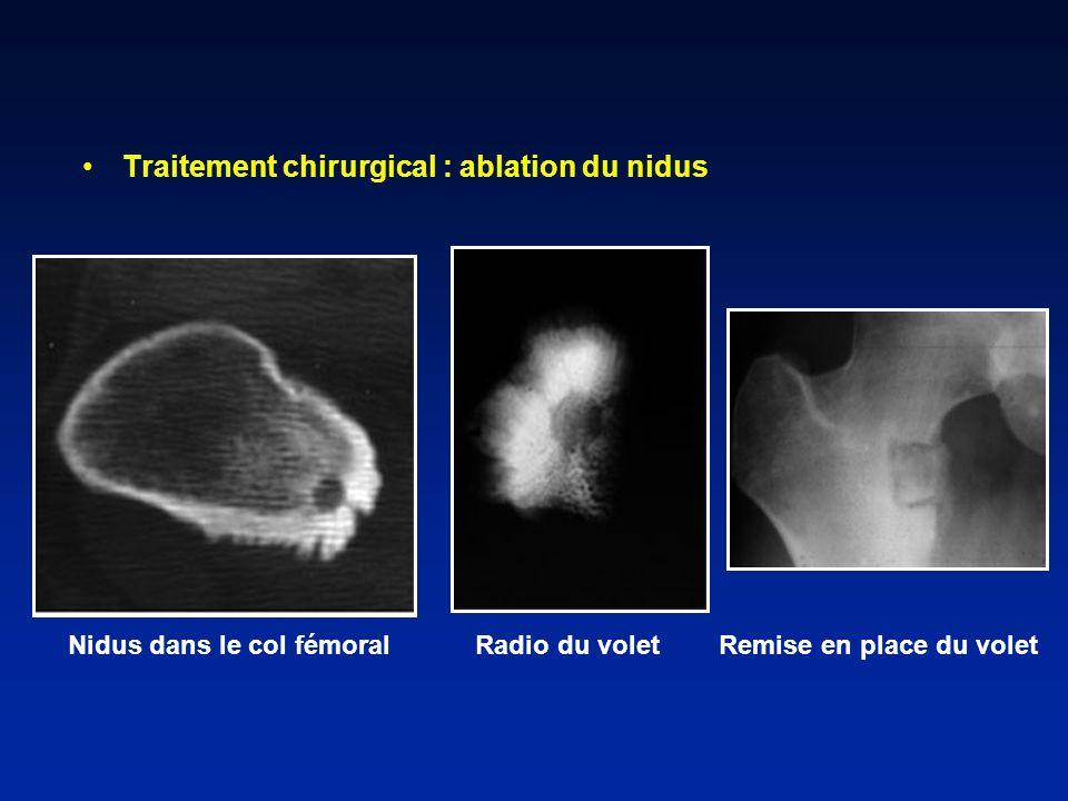 Traitement chirurgical : ablation du nidus Nidus dans le col fémoral Radio du volet Remise en place du volet