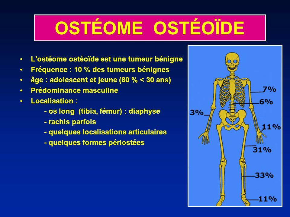 L'ostéome ostéoïde est une tumeur bénigne Fréquence : 10 % des tumeurs bénignes âge : adolescent et jeune (80 % < 30 ans) Prédominance masculine Local