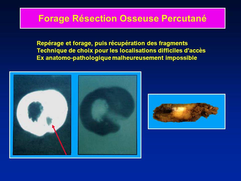 Repérage et forage, puis récupération des fragments Technique de choix pour les localisations difficiles d'accès Ex anatomo-pathologique malheureuseme