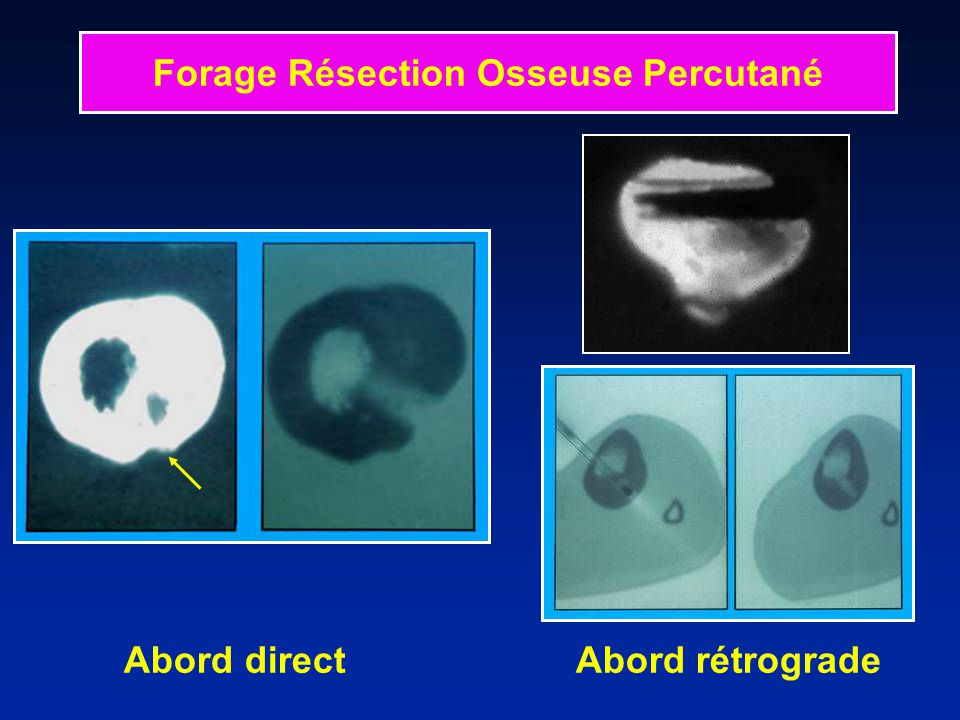Abord direct Abord rétrograde Forage Résection Osseuse Percutané