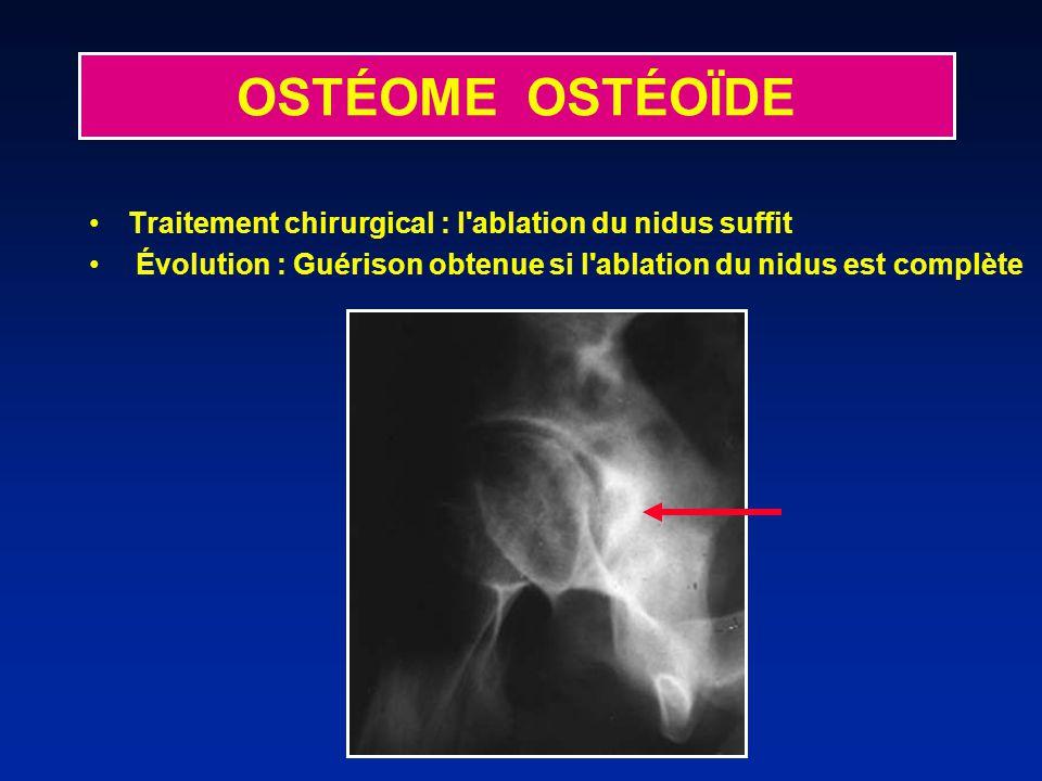 Traitement chirurgical : l'ablation du nidus suffit Évolution : Guérison obtenue si l'ablation du nidus est complète OSTÉOME OSTÉOÏDE