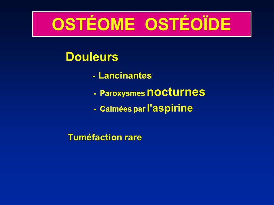 Douleurs - Lancinantes - Paroxysmes nocturnes - Calmées par l'aspirine Tuméfaction rare