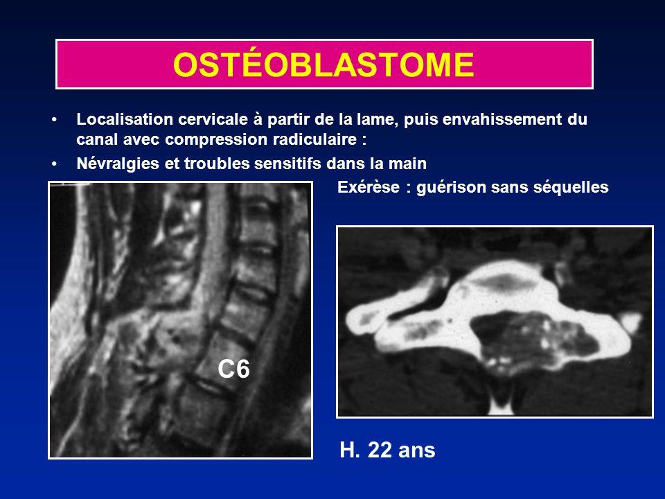 Localisation cervicale à partir de la lame, puis envahissement du canal avec compression radiculaire : Névralgies et troubles sensitifs dans la main E