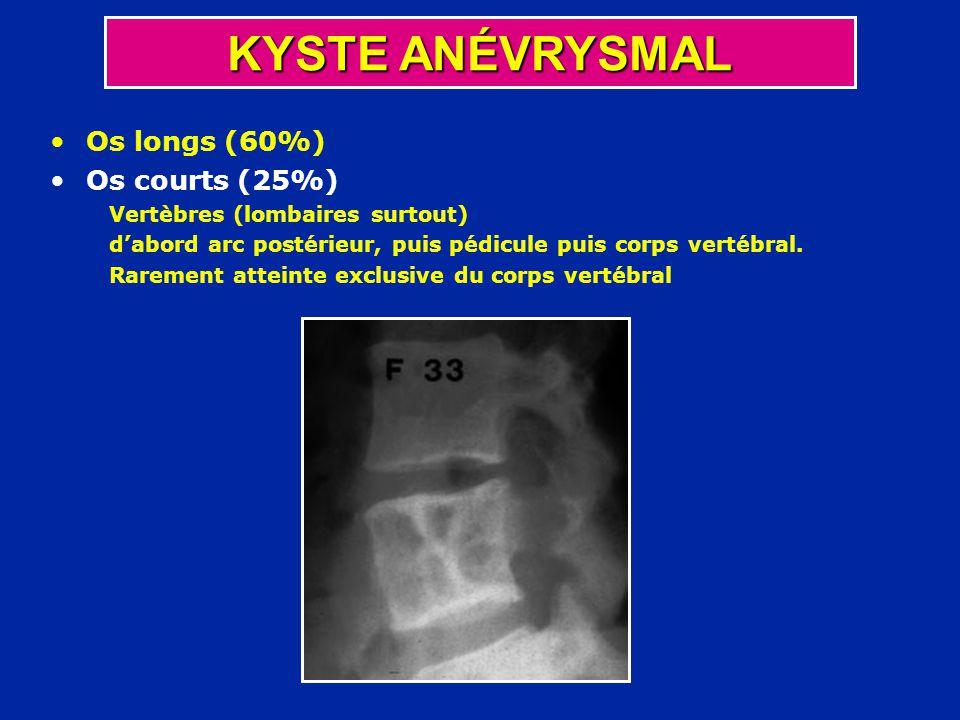 Os longs (60%) Os courts (25%) Vertèbres (lombaires surtout) dabord arc postérieur, puis pédicule puis corps vertébral. Rarement atteinte exclusive du
